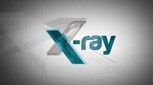 X_Ray Image6